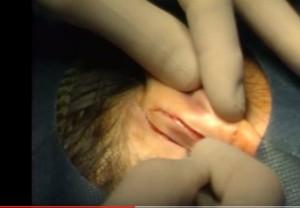 Intervencióbn o cirugia de orejas u otoplastia