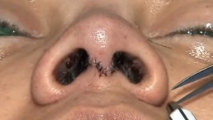 Cirugía de nariz o rinoplastia
