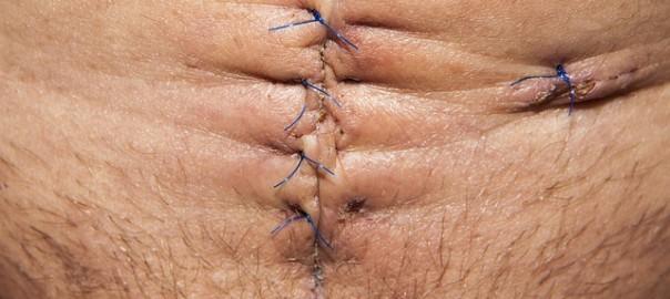 Suturas de cirugía de abdomen. Consejos de recuperación de abdominoplastia