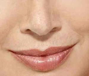 consigue la nariz que quieres sin someterte a una operación de rinoplastia tradicional. Rinoplastia con rellenos de ácido hialurónico valencia.