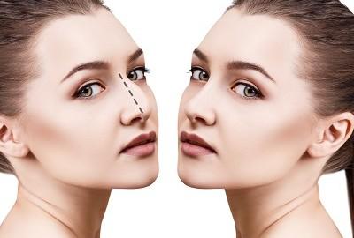 los mejores consejos para el postoperatorio de la cirugía de nariz.