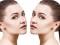 10 mejores consejos para acelerar el tiempo de recuperación de la rinoplastia