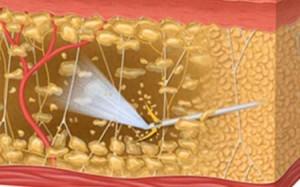 liposucción asistida por agua (aqualipo o bodyjet)