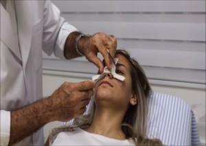 Rinoplastia Cirugia nariz