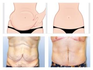 cirugía de abdomen para mayores plastic-clinic Valencia