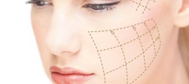 cara de una mujer con marcas en ella por donde se introducirán los hilos