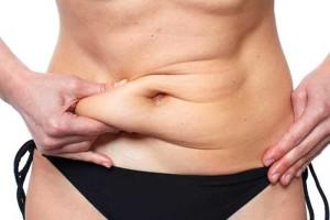 barriga con exceso de grasa. Candidatos a la cirugía de abdomen.