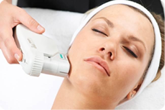 Tratamiento HIFU con Ultherapy