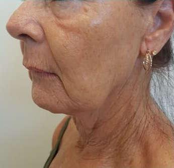 hifu facial en cuello: antes del tratamiento