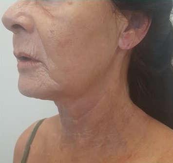 hifu facial en cuello: despues del tratamiento