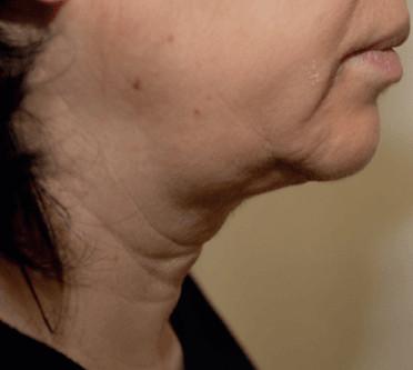 Ultherapy papada: antes del tratamiento
