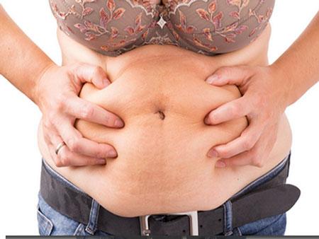 hinchazon abdominal por separación de musculos rectos del abdomen