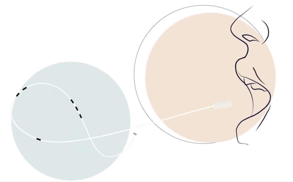 balon gastrico ingerible o tragable